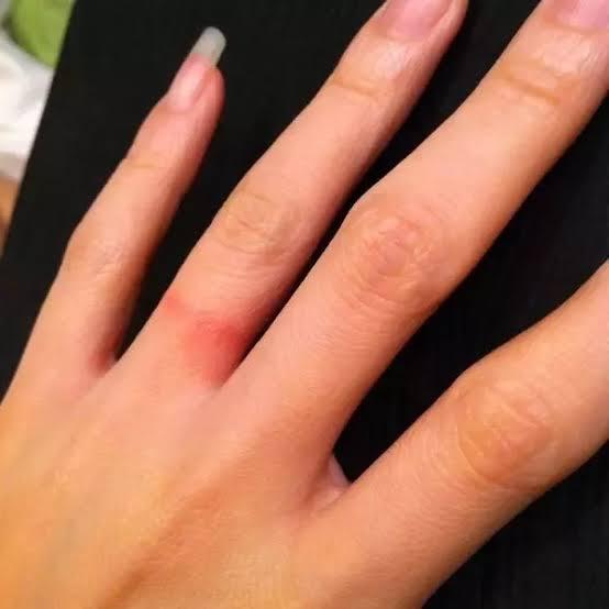 金属アレルギーにならない結婚指輪はこれ![ 職人おすすめの4選 ]