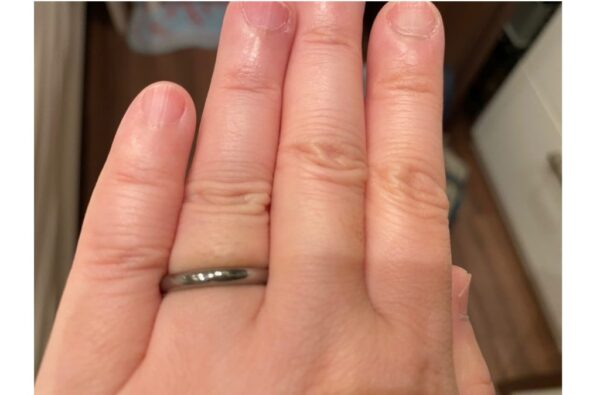 リングゲージにて指のサイズを測った際の画像2